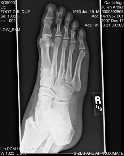 X ray vision of my foot
